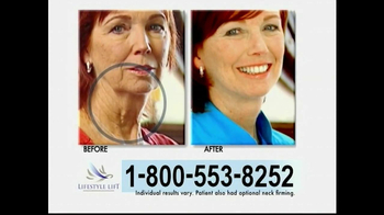 Lifestyle Lift TV Spot, 'Before and After'