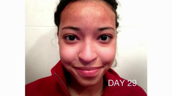 Acne Before & After: Elizabeth's Story thumbnail