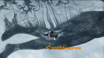 Smith Amp Nephew Verilast Technology Tv Commercial More