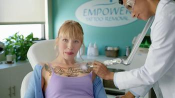 Tattoo Removal thumbnail