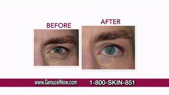 Chamonix Skin Care Genucel TV Spot, 'Celebrity Treatment' Ft. Laurie Dhue - Thumbnail 4