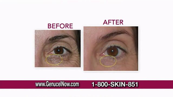 Chamonix Skin Care Genucel TV Spot, 'Celebrity Treatment' Ft. Laurie Dhue - Thumbnail 8