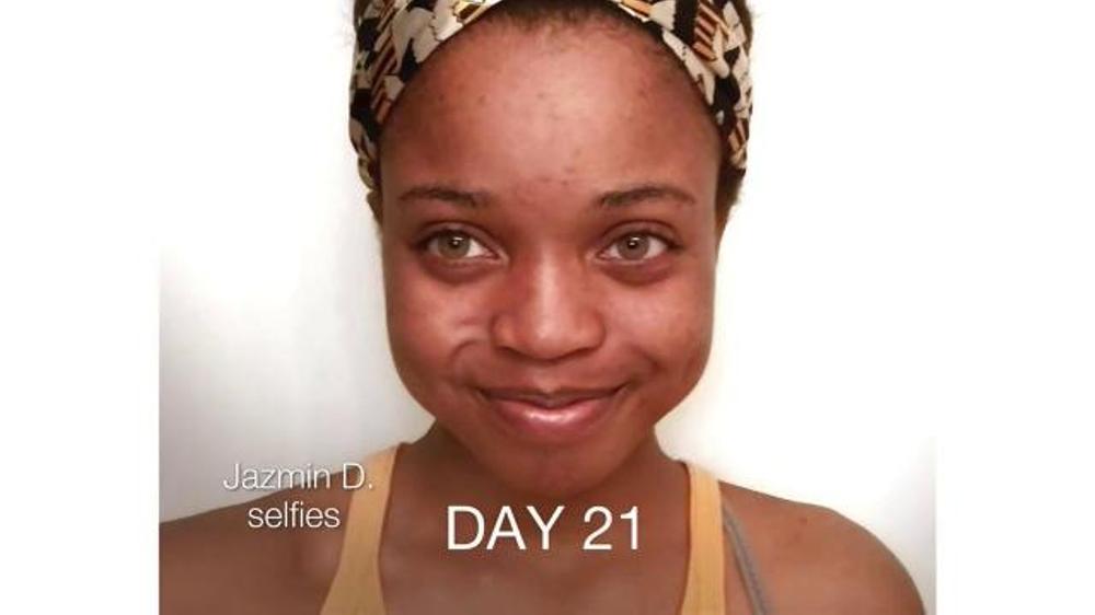 Neutrogena Rapid Clear Stubborn Acne TV Commercial, 'Jazmin's Story'