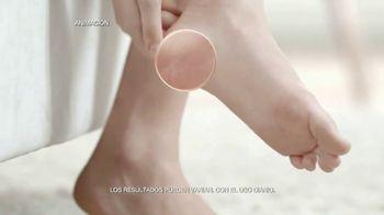 Goicoechea DiabetTX TV Spot, 'Sequedad extrema' [Spanish]